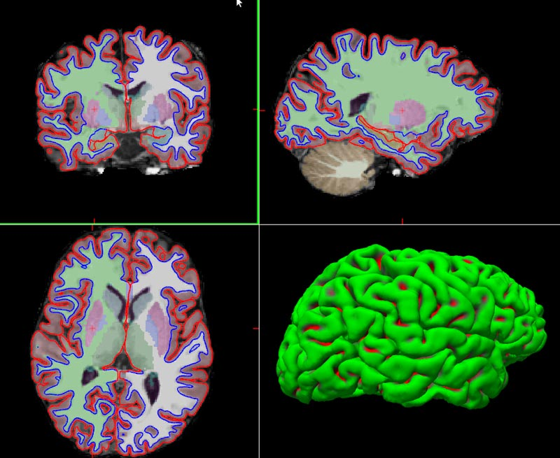 Fig. Segmentation of subcortical structures